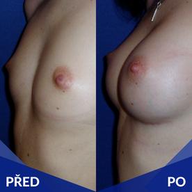Ukázka před/po prsní implantáty