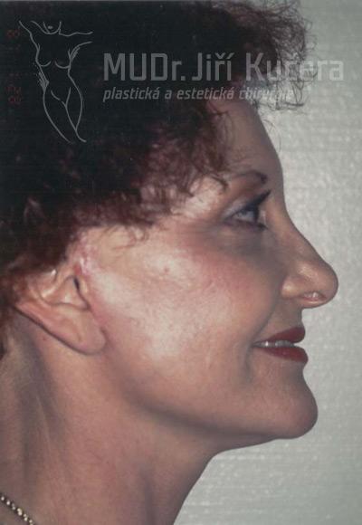facelift3b