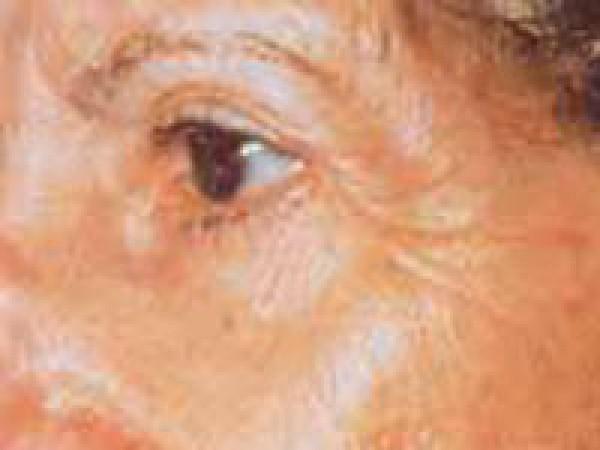 erbiovylaser2