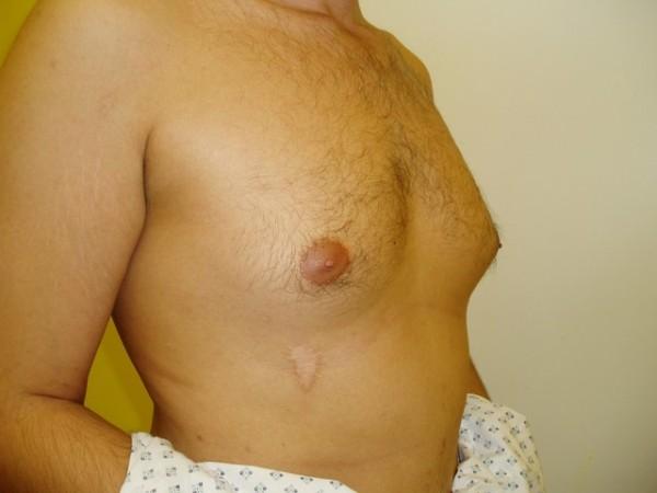 gynekomastie1