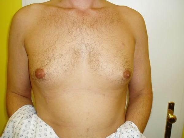 gynekomastie2