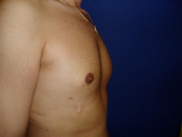 gynekomastie3