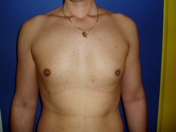 gynekomastie4